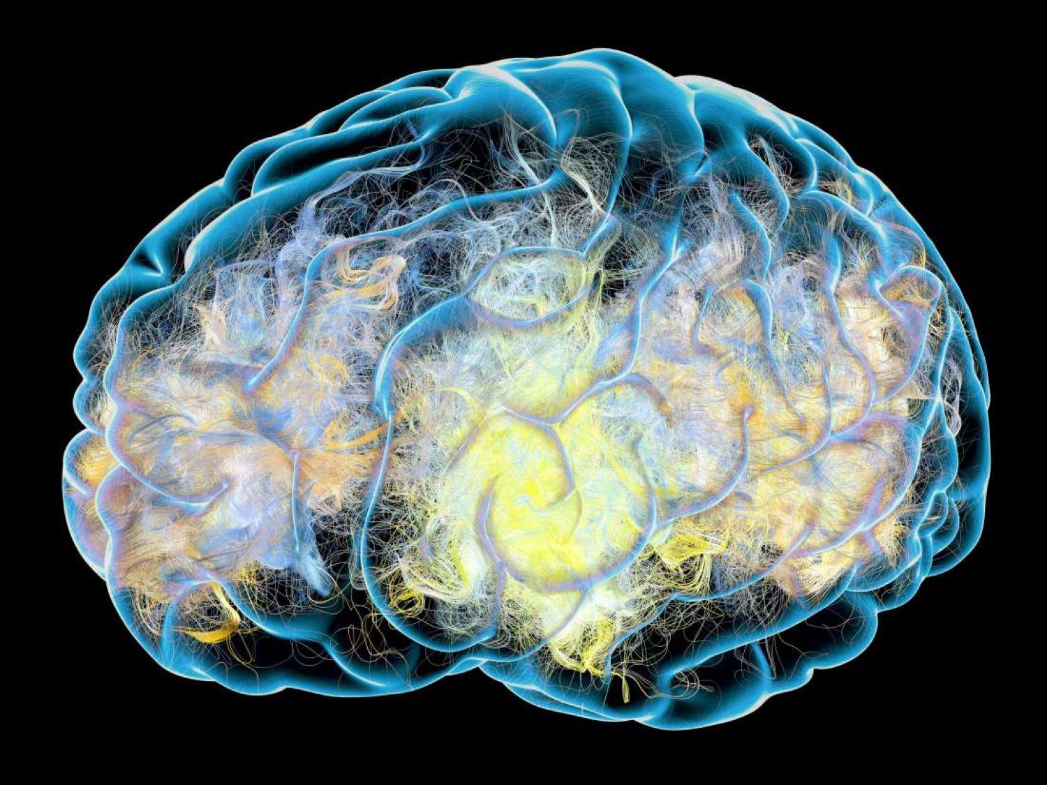 Brain activity Parkinsons image