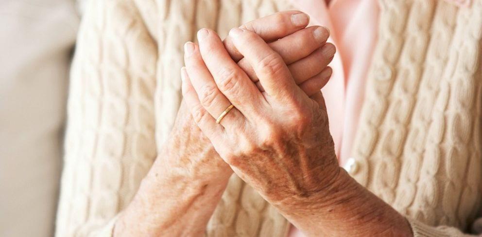 Image of Psoriatic arthritis in hand